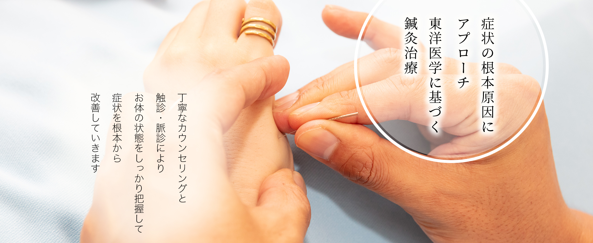症状の根本原因にアプローチ 東洋医学に基づく鍼灸治療